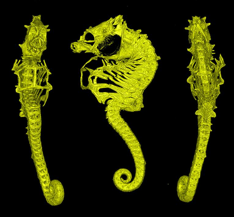 CT_Hippocampus_nalu